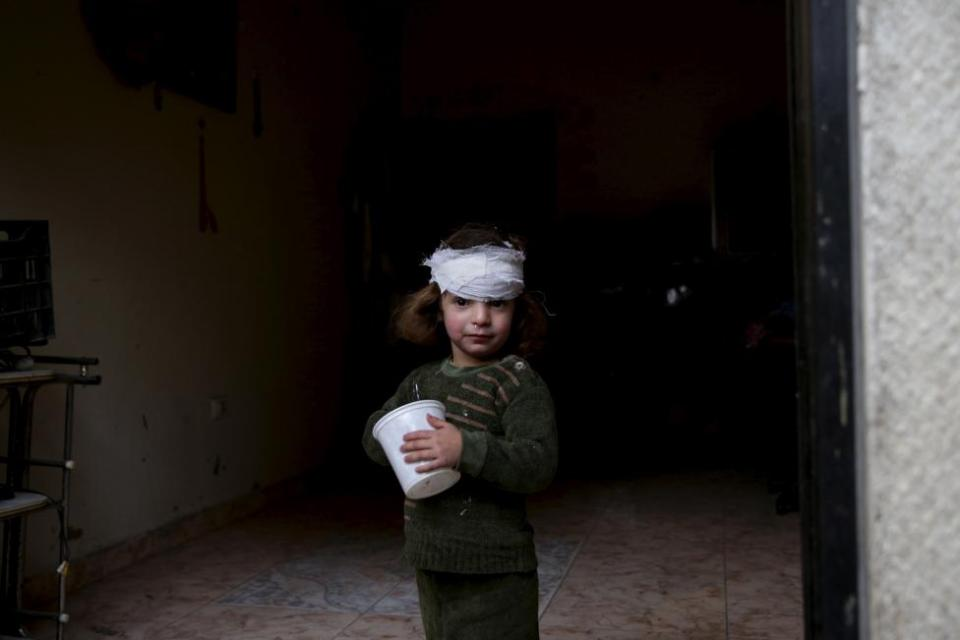 A girl, who was injured by what activists said was shelling by forces loyal to Syria's President Bashar al-Assad, stands at the entrance of her house in the Douma neighborhood of Damascus, Syria November 22, 2015.  REUTERS/Bassam Khabieh