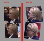 【鼻が違う】クリントン氏に影武者説が浮上!「ぶっ倒れた式典中の写真」と「2時間後に復活した時の写真」に違和感