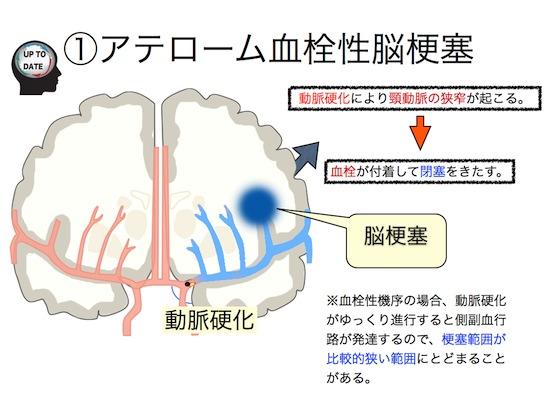 脳梗塞の分類.004