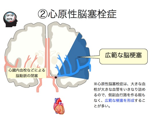 脳梗塞の分類.006