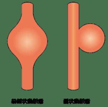 嚢状動脈瘤と紡錘状動脈瘤の図