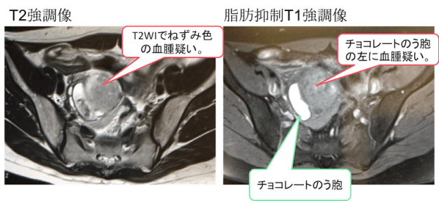 rupture of ovary MRI findings1