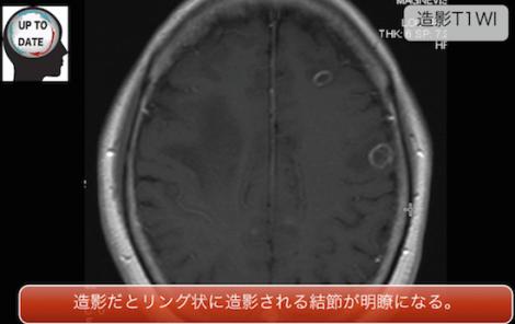 brainmeta2