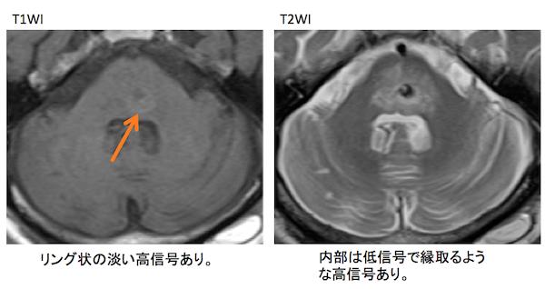 cerebral hemorrhage MRI