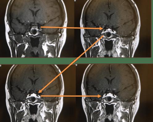 dynamic mri pituitary gland