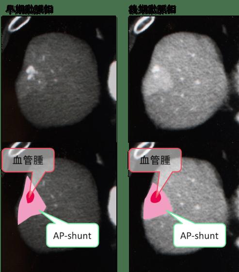 hepatic-hemangioma-with-AP-shunt-CT-findings