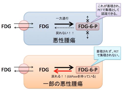 G6Pase