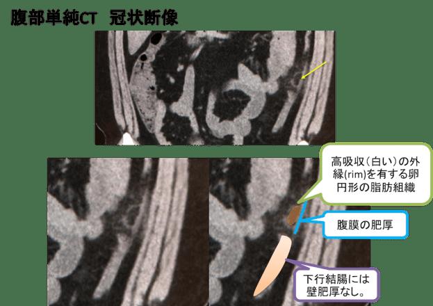 epiploic appendagitis ct findings2