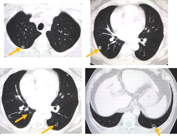 lung nodule with cavity CT findings