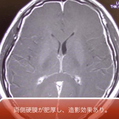 CSF hypovolemia syndrome1
