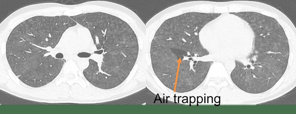 CT findings of Hypersensitivity Pneumonitis1