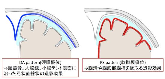 DA patternPS pattern1