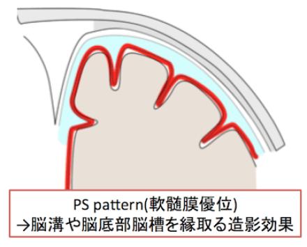 PSpattern