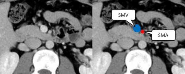 SMA径とSMV径の正常の関係の画像