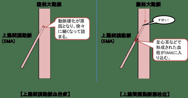 SMA-occulusion