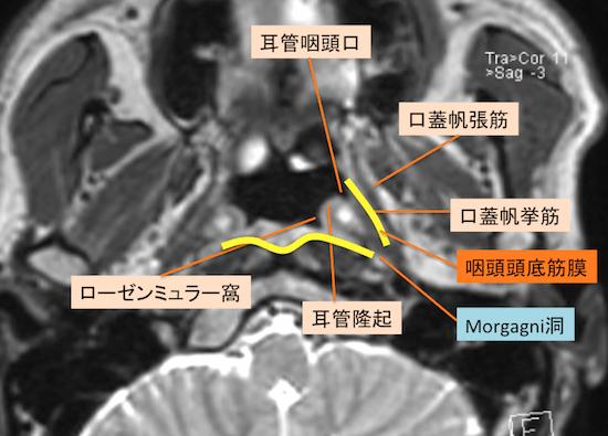 epipharyngeal carcinoma1