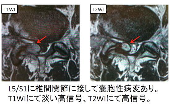 intraspinal synovial:ganglion cyst