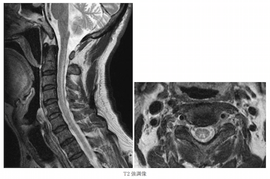 SUBACUTE COMBINED DEGENERATION OF SPINAL CORD