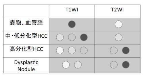 hepatocellular carcinoma2