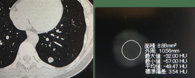 lung-hamartoma