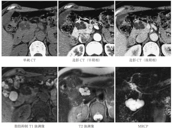serous cystic neoplasm mri ct