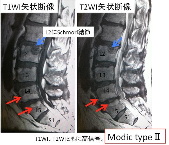 Modic typeⅡ