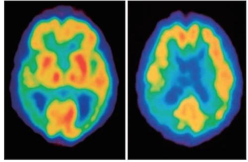 Alzheimer spect