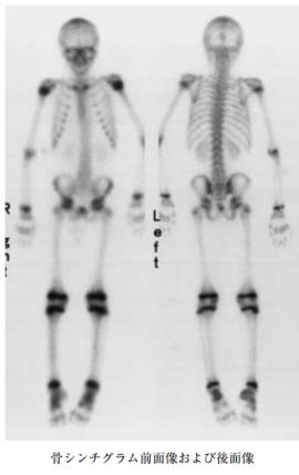 bone scan