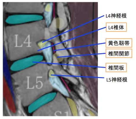 canalstenosis5