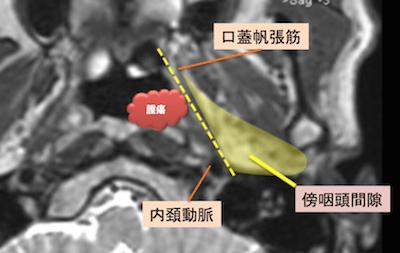 epipharyngeal carcinoma5