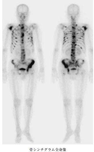 multiple bone metastasis