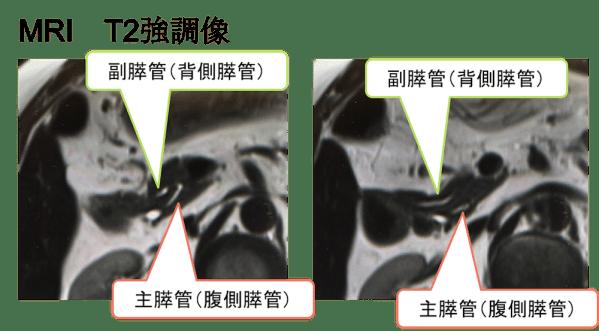 pancreas divisum mri findings1