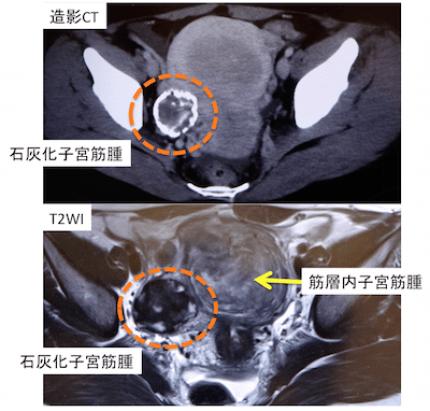 pedunculated abdominal uterine myoma