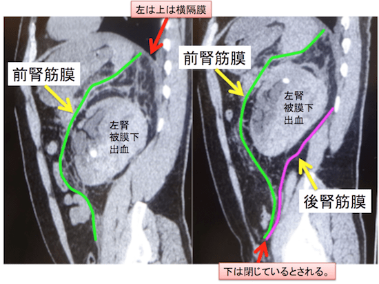 perirenal space1