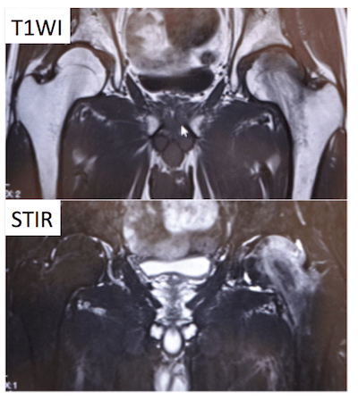 taransient osteoporosis of the hip
