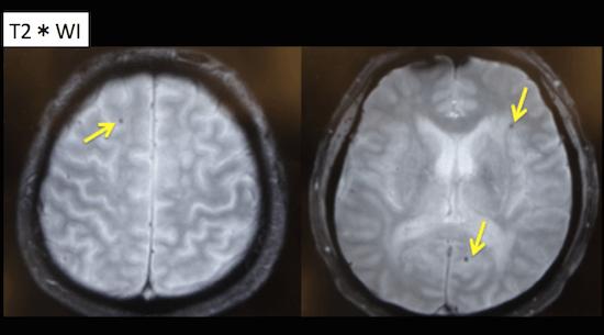 cerebral amyloid angiopathy
