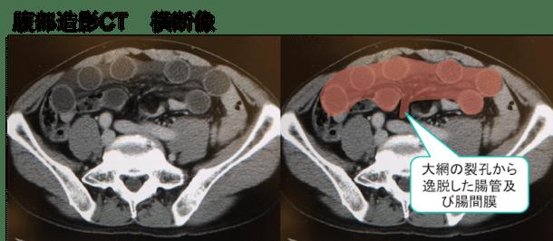 Omental hiatus hernia CT findings1