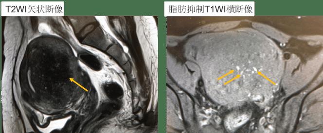 adenomyosis mri findings
