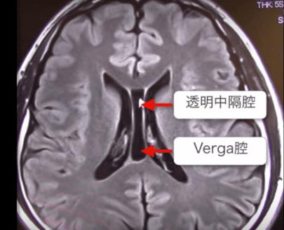 透明中隔腔およびベルガ腔のMRI画像