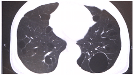 diffuse lymphoid hyperplasia