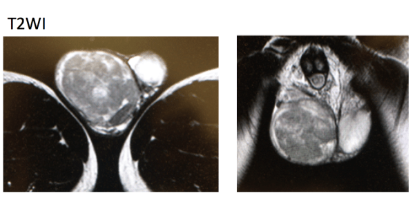 seminoma-mri-findings1
