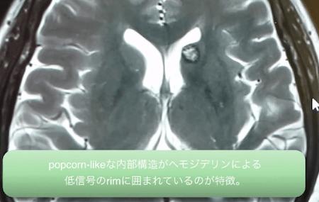 cavernous angioma