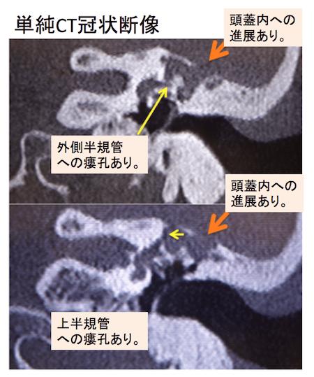 cholesteatoma with labyrinthine fistulae