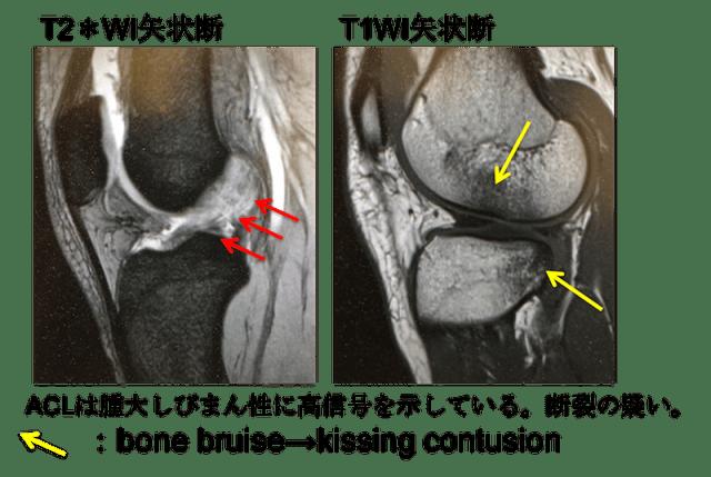 anterior cruciate ligament tear mri findings