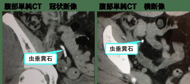 虫垂糞石のCT画像