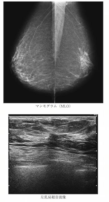 breast spicula