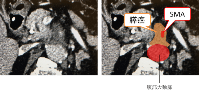 pk artery invasion ct findings