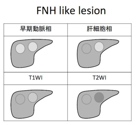 FNH like lesion