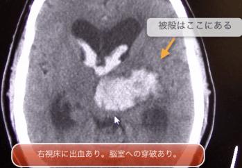 intracranial
