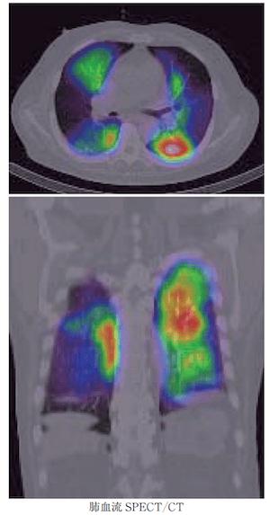 pulmonary embolism spect